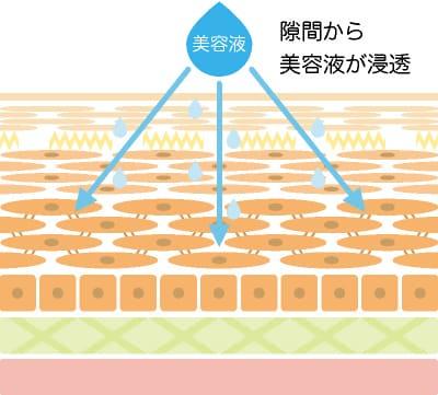 イオン導入のイラスト