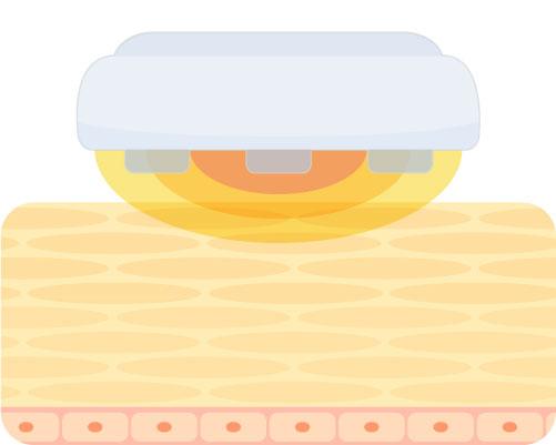 美顔器の温冷機能(温熱・冷却)のイラスト