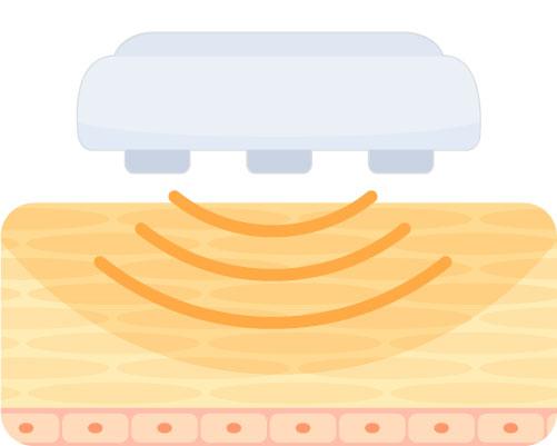美顔器のラジオ波(RF)のイラスト