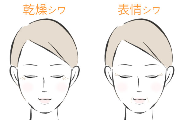 シワの種類のイラスト(乾燥シワと表情シワ)